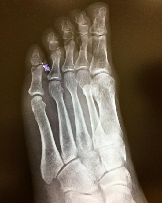 足の小指にヒビ レントゲン写真