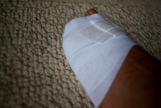 足の小指にヒビ