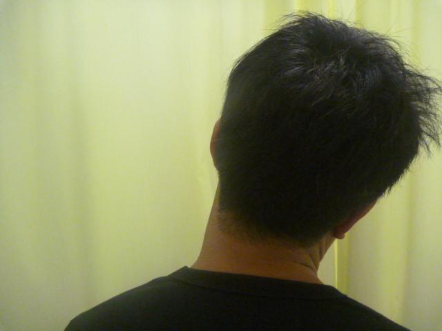 施療後の状態 首が左側に少し倒れている。
