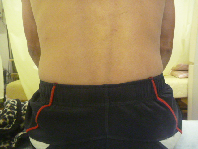 鉄棒で懸垂をしている時腰を負傷する。