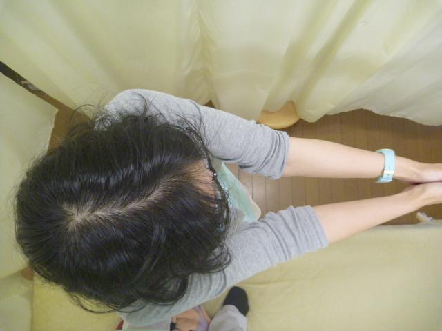 施療後 起立時右回旋で左腰に痛み無くなる