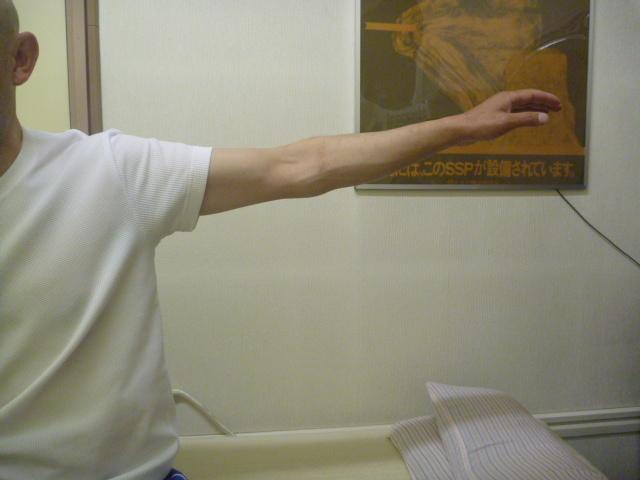 施療前 外転挙上で左肩上部に痛みがあり可動制限あり