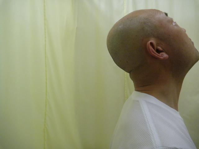 施療後 首後屈での首後下部の痛み和らぐ