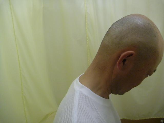 施療後 首前屈での首後下部の痛み和らぐ
