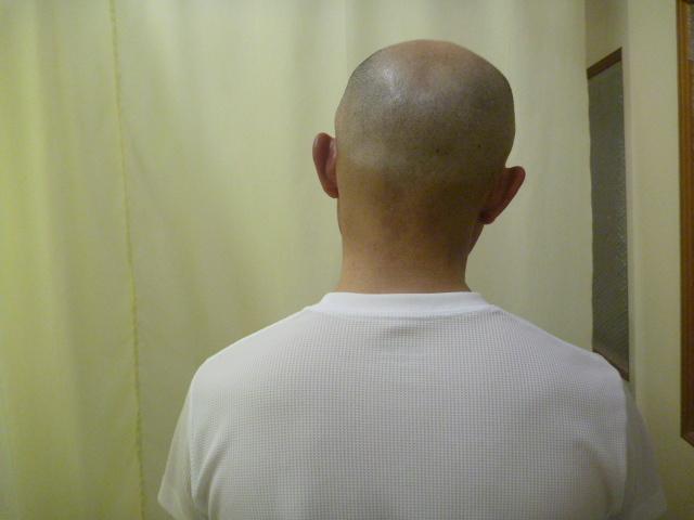 施療前 首右側へ側屈で左首すじに痛みあり