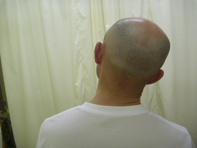 施療後 首右側へ側屈での左首すじの痛み和らぐ