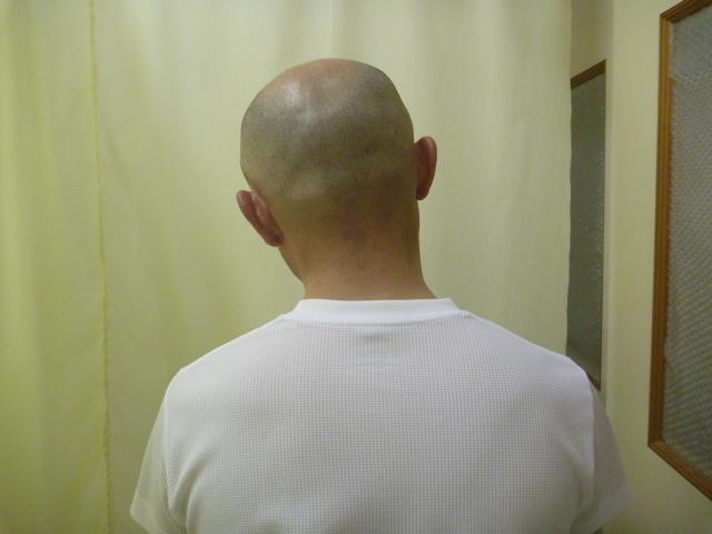 施療前 首左側屈で右首すじに痛みあり