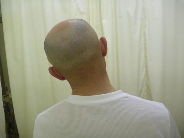 施療後 首左側屈での右首すじの痛み和らぐ