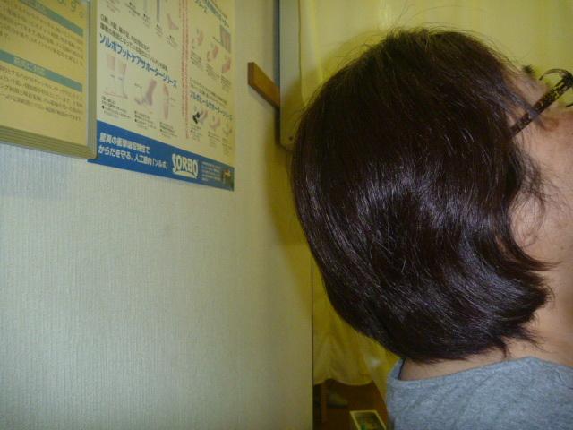施療前 後屈で首後部に痛みと肩から手のひらまでシビレあり