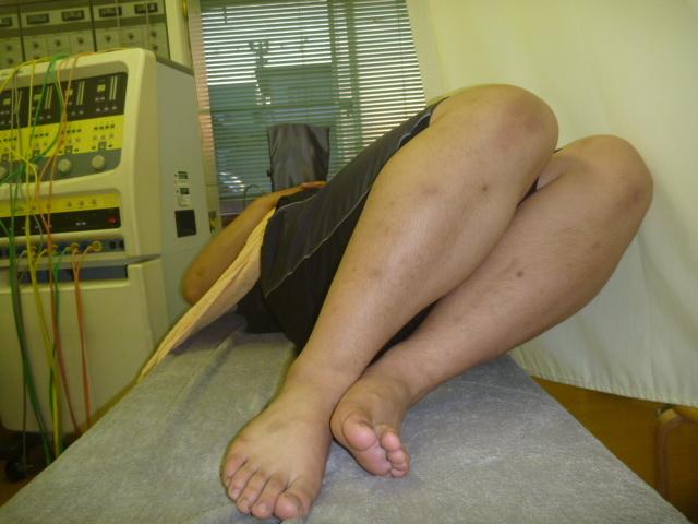 施療前 両膝立て左側に倒しで右腰に痛みあり