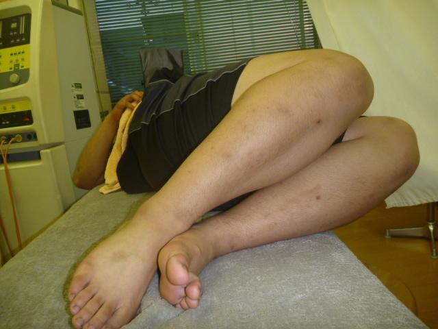 施療後 両膝立て左側に倒しでの右腰の痛みかなり無くなる