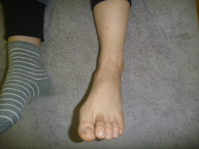 子供を抱っこしていて段差に気付かず左足首を捻り負傷する
