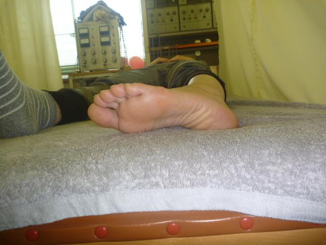 施療後 左足関節回内が楽になる  これは3日目の映像