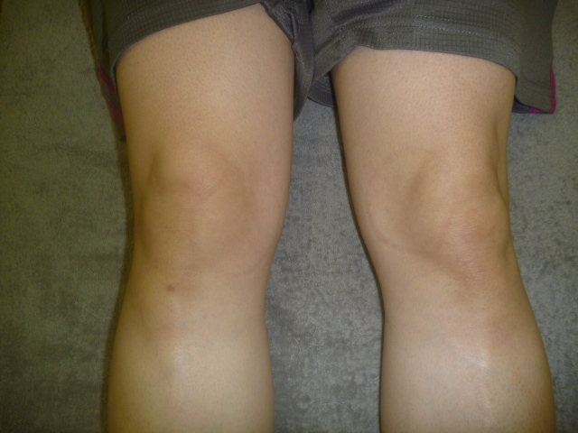 テニスをしていて右膝をカクッと捻り負傷する。