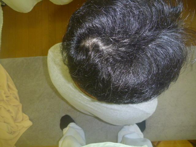 施療前 座位で腰を右回旋時(肩の位置を確認)