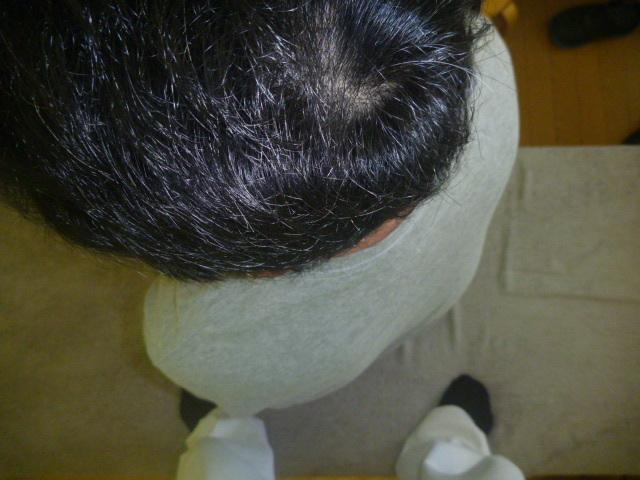 施療後 座位で腰を左回旋