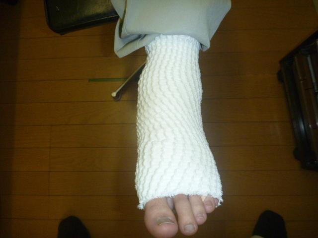 段差のところから踏み外し第5中足骨を捻り負傷する。