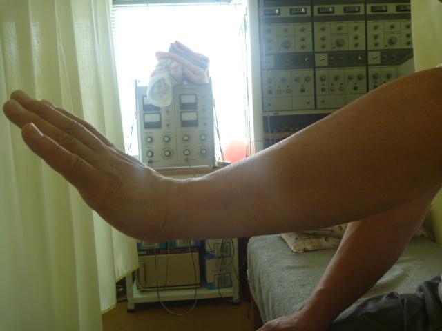 施療前 左手首の背屈が肘に痛みがあり出来ない