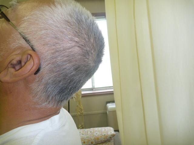 施療後 首の後屈がしやすく首後下部の痛みが和らぐ