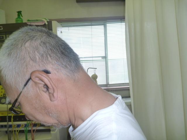 施療前 首を前屈での首後下部に痛み