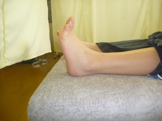 施療前 左足関節背屈により足関節に痛みあり
