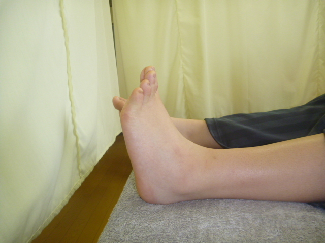 施療後 左足関節背屈での足関節の痛み和らぐ