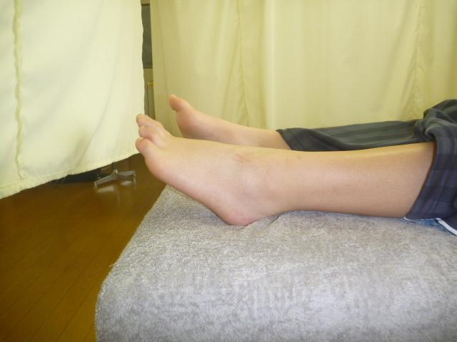 施療前 左足関節底屈で足関節に痛みあり