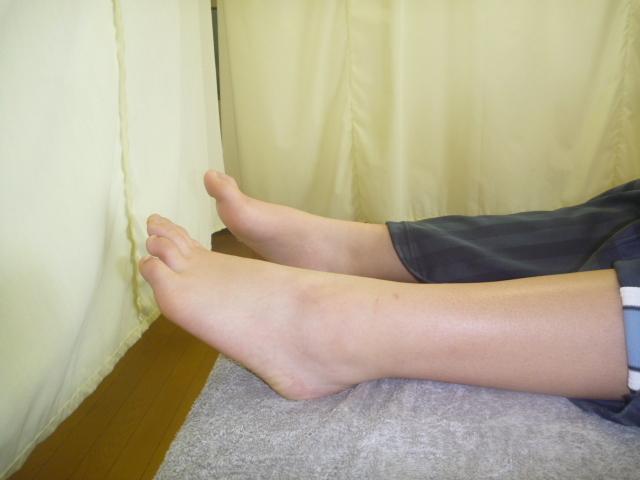 施療後 左足関節底屈での足関節に力が入りやすい