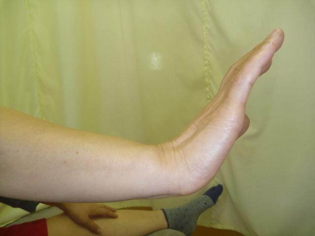 施療前 右手首背屈での痛み