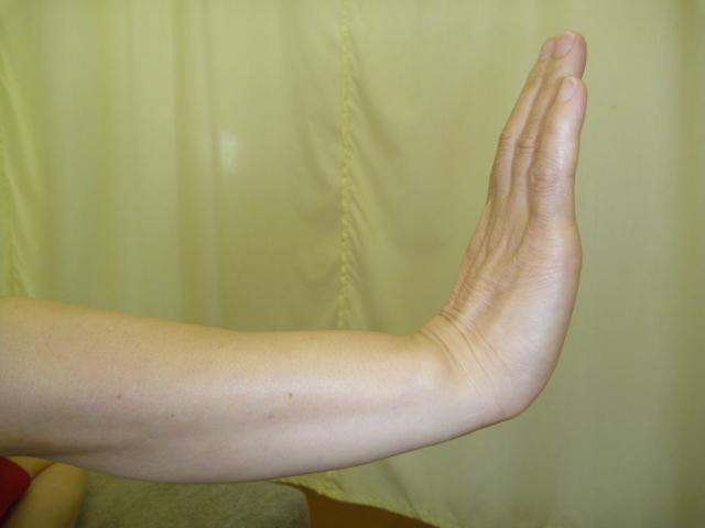 施療後 背屈での痛み張り和らぎ可動角度が拡大