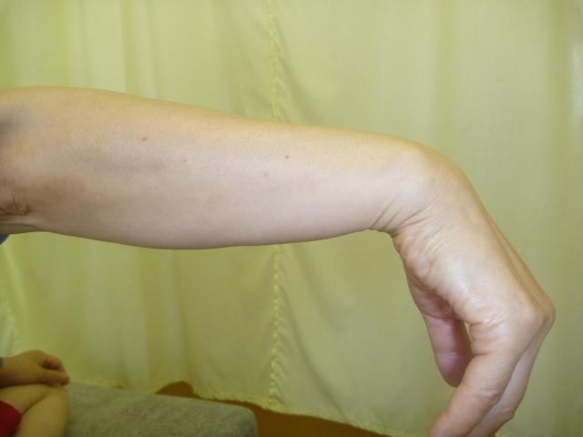 施療後 右手首掌屈での痛みと張りが和らぐ