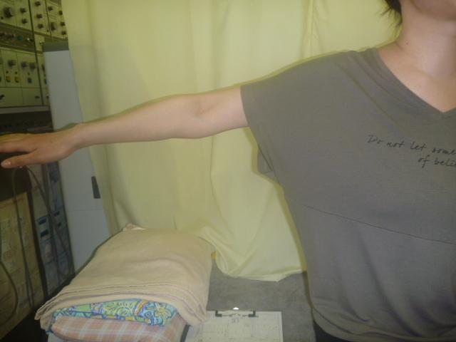 施療前 右肩外転挙上で肩の痛み増し可動制限あり
