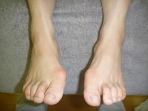 右外反母趾