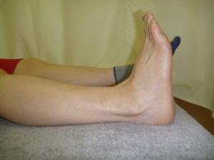 施療前 足首、アキレス腱部分に張り痛み