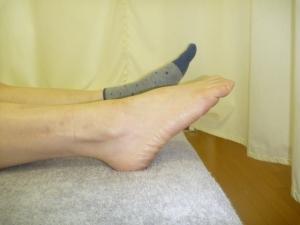 施療前 足首・アキレス腱に痛みあり