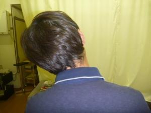 施療前 左側屈で右頸すじに痛み
