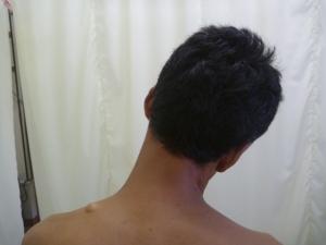 施療後 左頸すじの痛み和らぐ