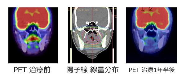 case-ji010.jpg