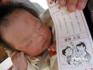 乳児湿疹①