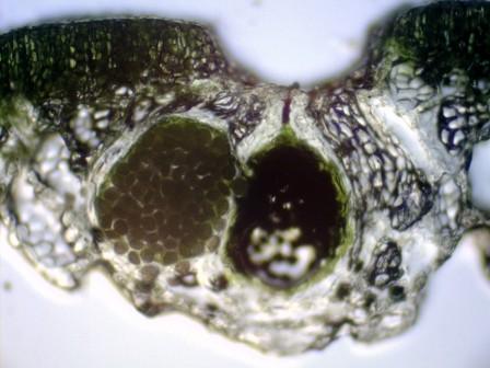 イチョウウキゴケ胞子1