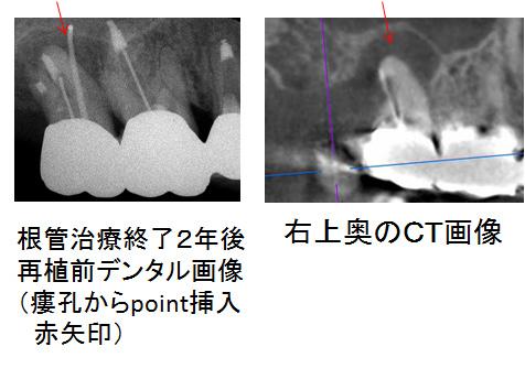 右上奥治療終了2年後及びCT画像