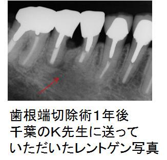 歯根端切除術1年後