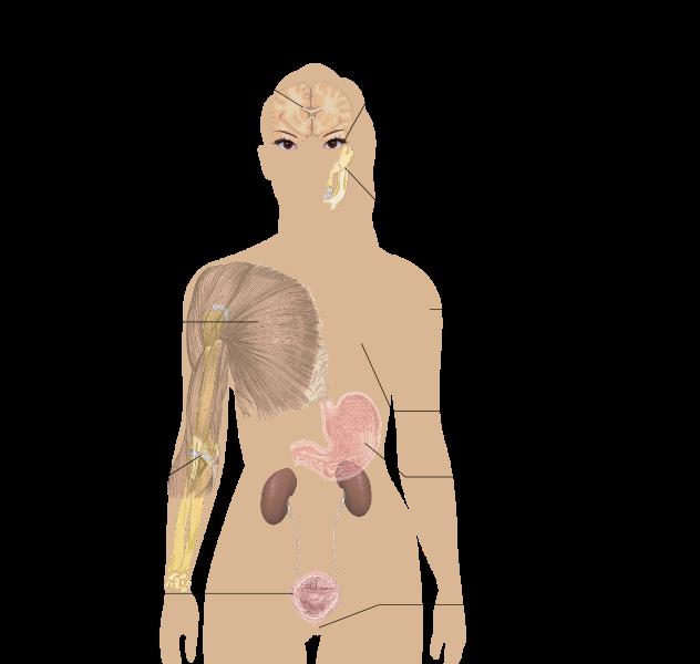 線維筋痛症Wikimedia