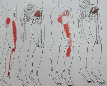 小殿筋の関連痛パターン