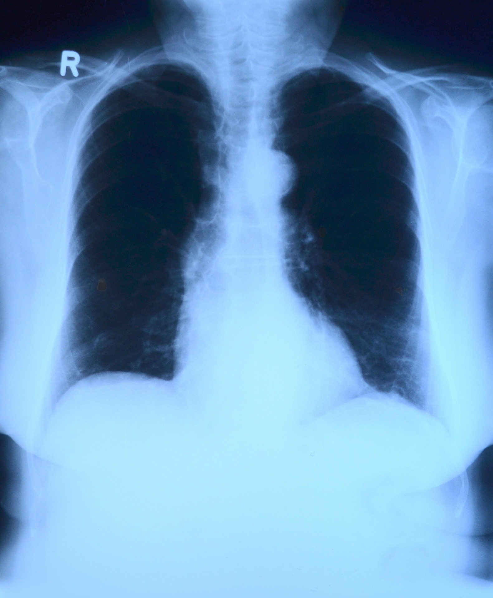 x-ray-image-568241_1920.jpg
