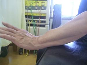 手首の背屈