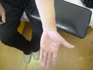 左前腕の回外時の映像 左肘外側部に痛み