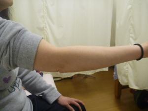 施療前の右肘伸展状態
