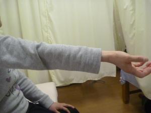 施療後手のひら上で肘伸展状態