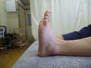 施療後 左足関節捻挫